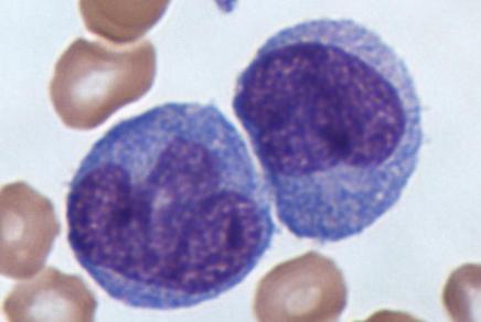 Monozyten und rote Blutkörperchen im Lichtmikroskop